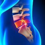 Orthopedics — Laparoscopic discectomy