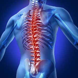 Orthopedics — Scoliosis correction