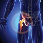 Orthopedics — Total hip replacement