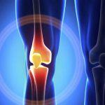 Orthopedics — Total knee replacement